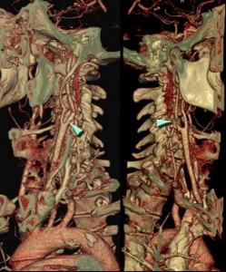 angiografia_arterias_cervicales