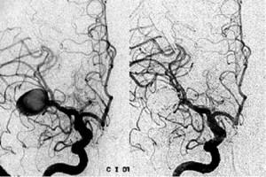 angiografia_cerebral