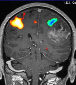 resonanciamagneticacerebralfuncional